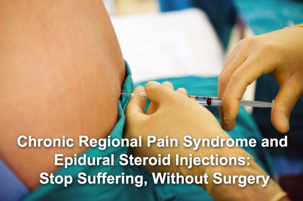 Chronic Regional Pain Syndrome and Epidural Steroid Injections: Stop Suffering, Without Surgery