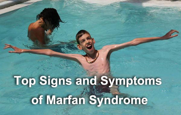 Top Signs and Symptoms of Marfan Syndrome