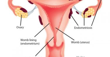 endometriosis pain relief