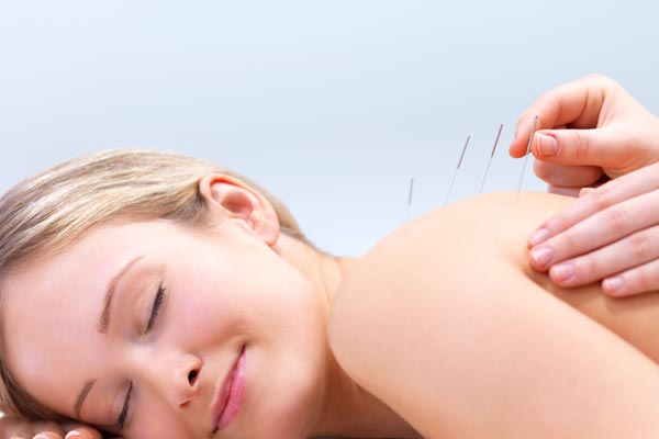 Acupuncture for sciatic nerve pain